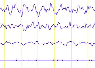 Sommeil lent N3 « sommeil profond »